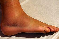Jogging: Verletzungen des Bindegewebes vorbeugen