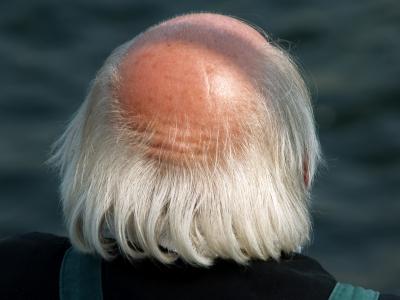 Glatzenbildung bei Haarausfall